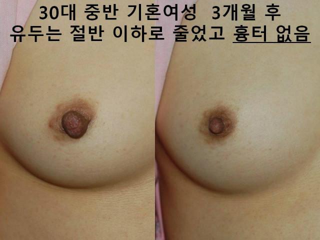 female np rdx III (8).JPG