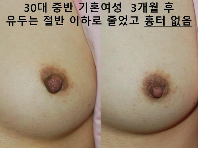female np rdx III (9).JPG